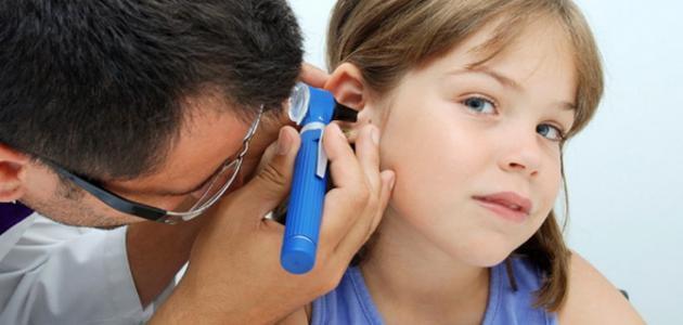 علاج التهاب الأذن الوسطى - فيديو