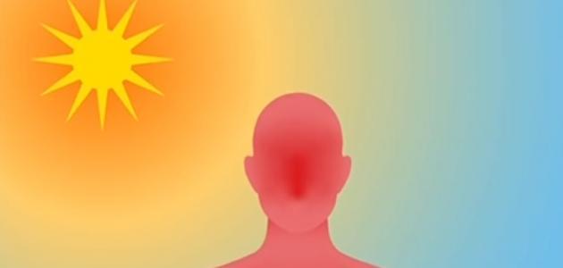 طريقة علاج ضربة الشمس