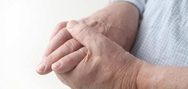 ما هو علاج وطرق الوقاية من مرض النقرس - فيديو