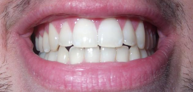 6585bbc54 عيوب العدسات اللاصقة للأسنان - موضوع