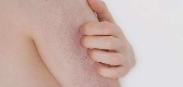 طريقة علاج جلد الوزة