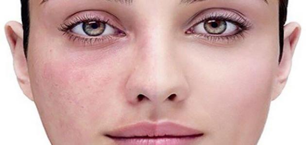 ما هي أسباب مرض الوردية
