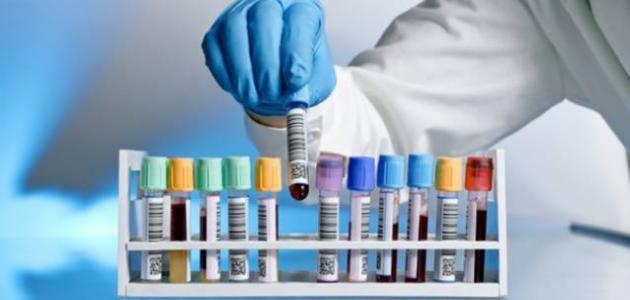 ما هو التهاب الكبد الوبائي ب؟ التهاب الكبد الوبائي هو التهاب فيروسي يصيب  الكبد.