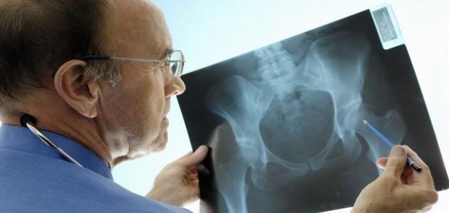 أعراض وتشخيص كسور العظام - فيديو