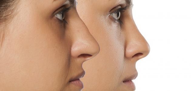 صعوبة التنفس بعد عملية تجميل الأنف