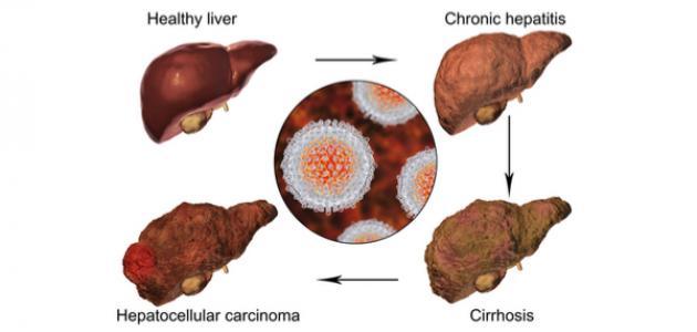 مراحل تطور فيروس سي