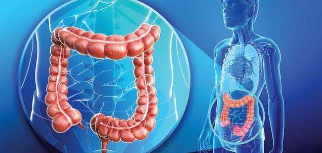 أنواع التهابات القولون وأعراضه - فيديو