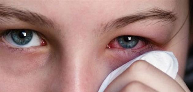 ما هو مرض الرمد الربيعي - فيديو