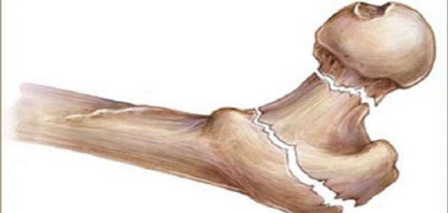 أسباب هشاشة العظام - فيديو