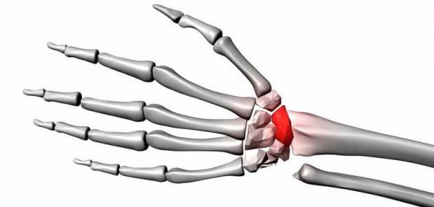 أنواع كسور العظام - فيديو