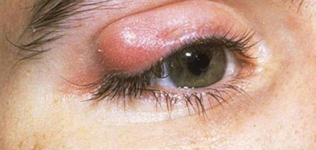ظهور أكياس دهنية تحت الجلد