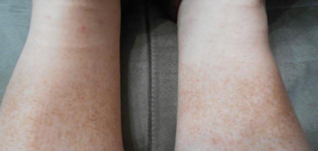 ظهور البقع البنية على الجلد