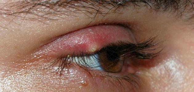 ظهور دمامل في جفن العين