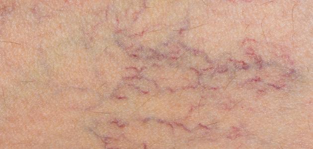 ظهور الشعيرات الدموية على سطح الجلد
