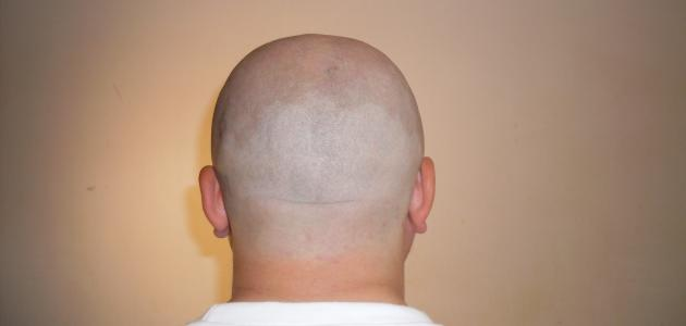 فوائد حلق الشعر بالموس