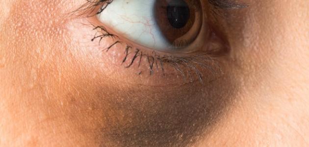 أسباب ظهور الهالات السوداء وعلاجها