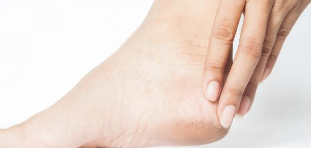 علاج جفاف وتشقق القدمين