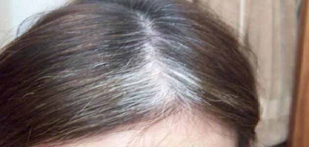 ما سبب ظهور الشيب في الشعر