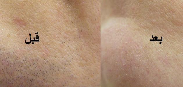 علاج ظهور الشعر الزائد في الوجه