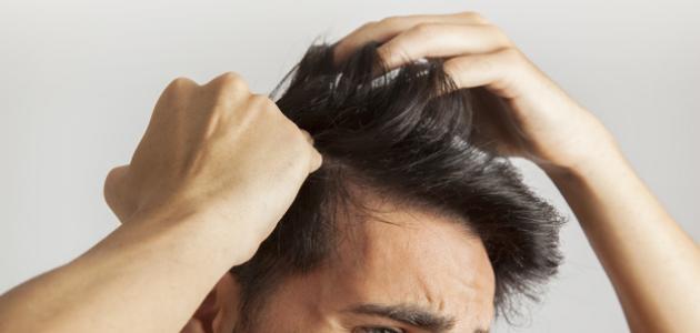 طريقة لمنع تساقط الشعر للرجال