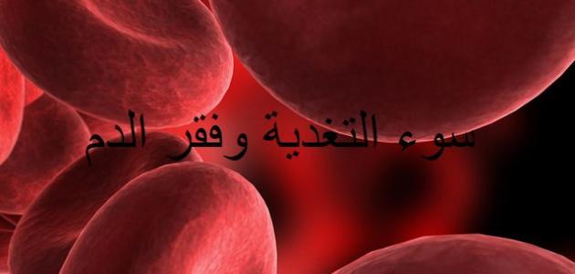 سوء التغذية وفقر الدم