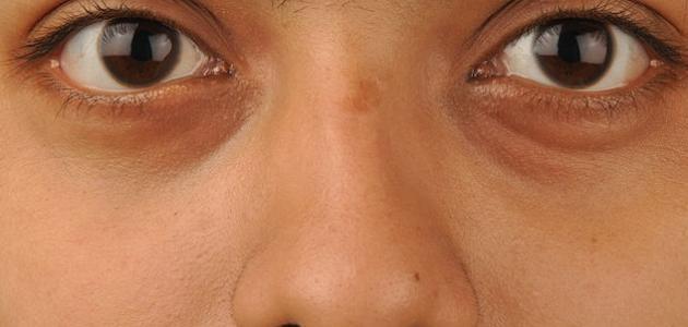 زهر الرأسمالية مرونة اسباب ظهور الهالات السوداء تحت العين عند الرجال Alterazioni Org