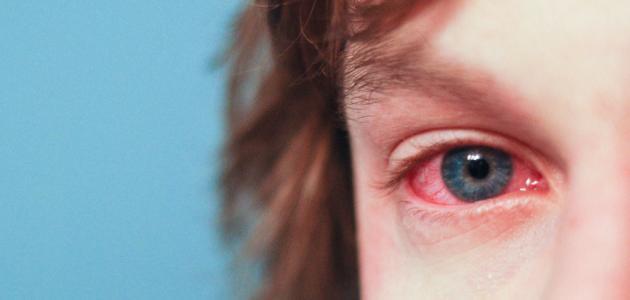 ارتفاع ضغط العين المفاجئ