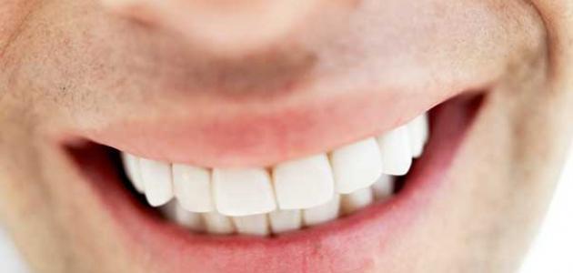تركيب الأسنان الثابتة