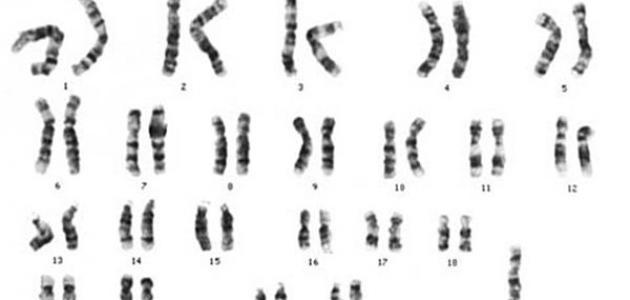 عدد الكروموسومات في متلازمة تيرنر