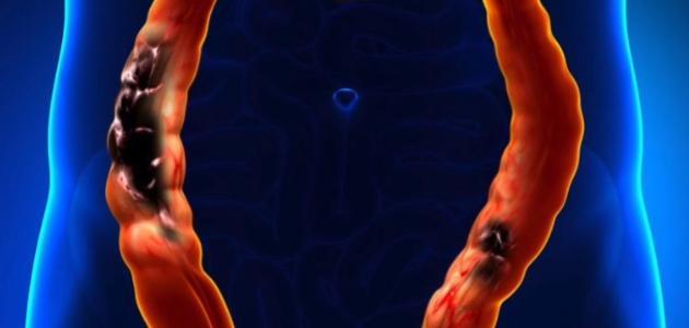من أعراض سرطان القولون