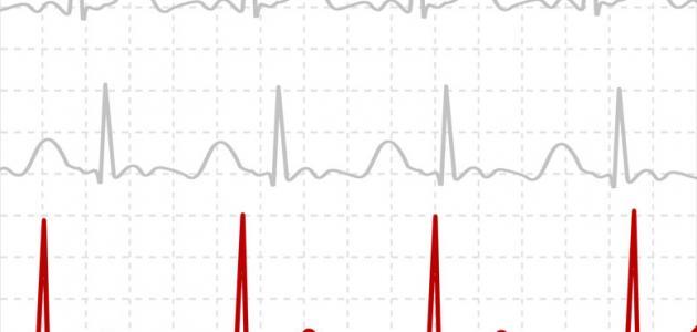 ماذا يكشف تخطيط القلب