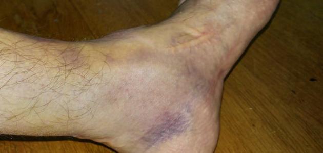 كيفية علاج كدمات القدم