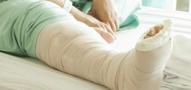 ما هو علاج كسور العظام ومضاعفاته - فيديو