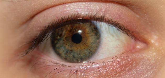 كيفية علاج جفاف العين بالأعشاب