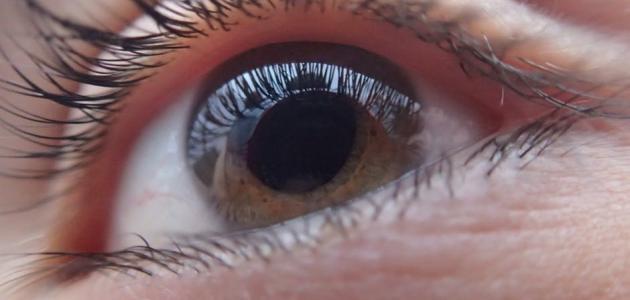 1420acf34 من أعراض ضعف النظر - موضوع