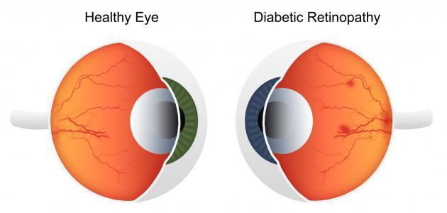 Image result for اعتلال شبكية العين