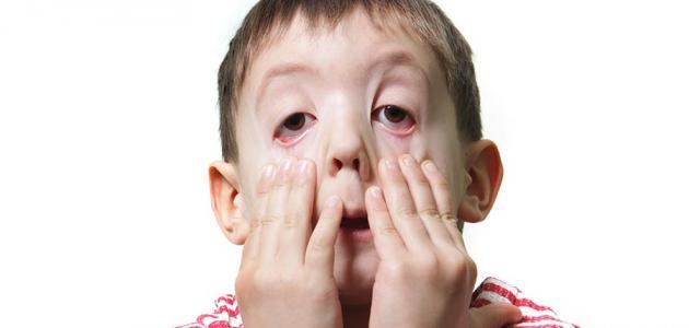 نصائح مهمة في التهاب الملتحمة