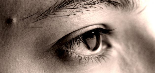 العين المحتقنة