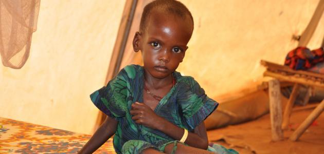 سوء التغذية وأسبابه