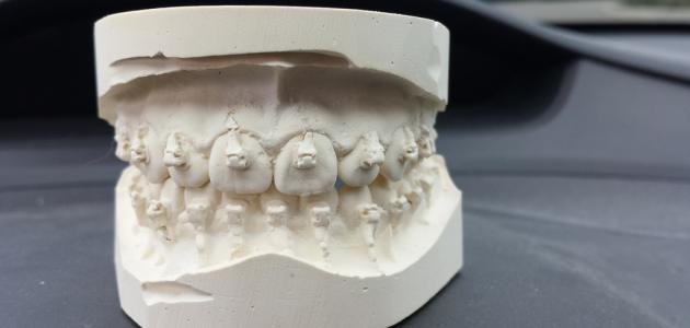 عدد الأسنان الدائمة عند البالغين