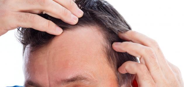 ما هو سبب ظهور الشعر الابيض