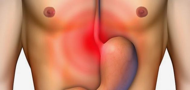 ما هو علاج حرقة المعدة