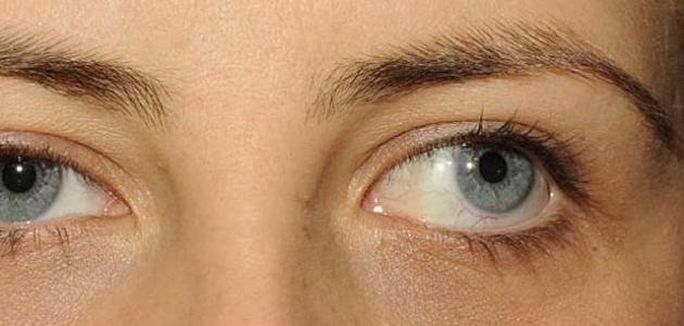 تعريف انحراف العين