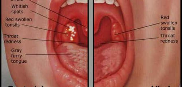 Oral Gonorrhea In The Throat ما هو علاج ا�...
