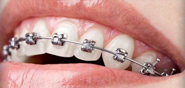 ما أضرار تقويم الأسنان