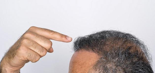 كيفية المحافظة على الشعر من التساقط للرجال
