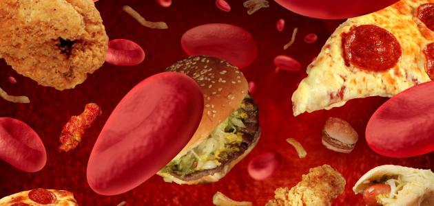 مرض الكوليسترول