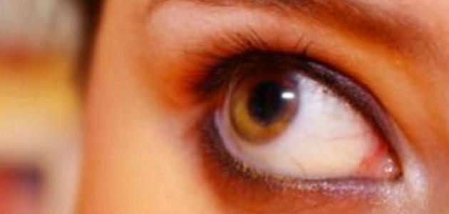 و يكون هذا الالتهاب إما بكتيري (تسببه بكتيريا) أو فيروسي (تسببه فيروسات) أو  نتيجة حساسية العين لمواد معينة. و هو معدي حيث يمكن أن ينتقل بسهولة من شخص  إلى ...