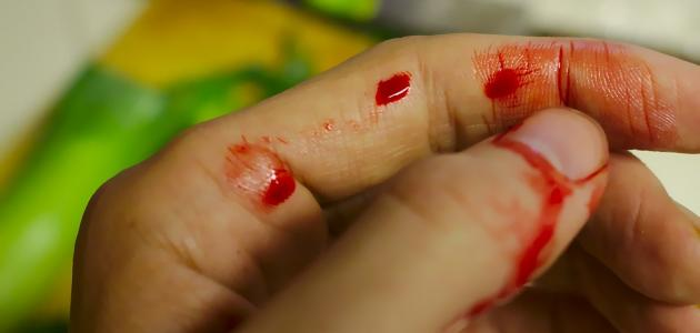 What are the causes of bleeding