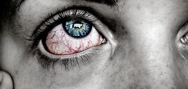 ما هو علاج ضغط العين
